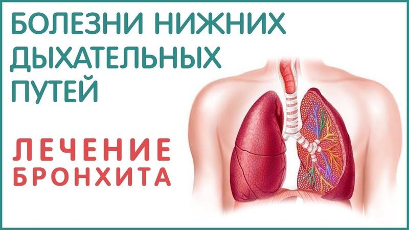 Бронхит пневмония плеврит бронхиальная астма Как лечить Фролов Ю А