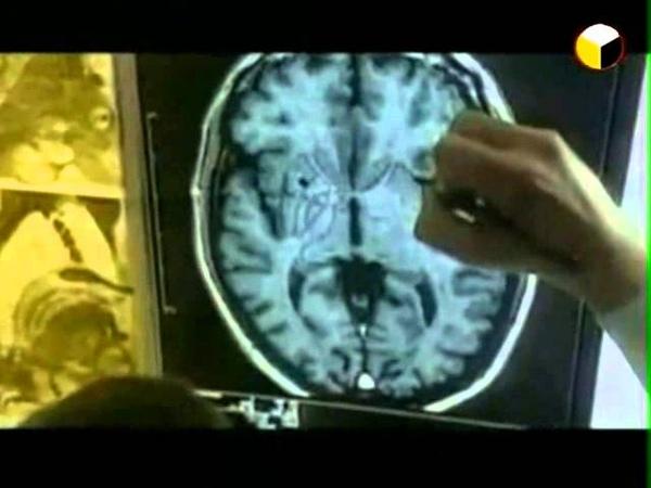 Под прицелом мозг психотронное оружие часть 5 из 12