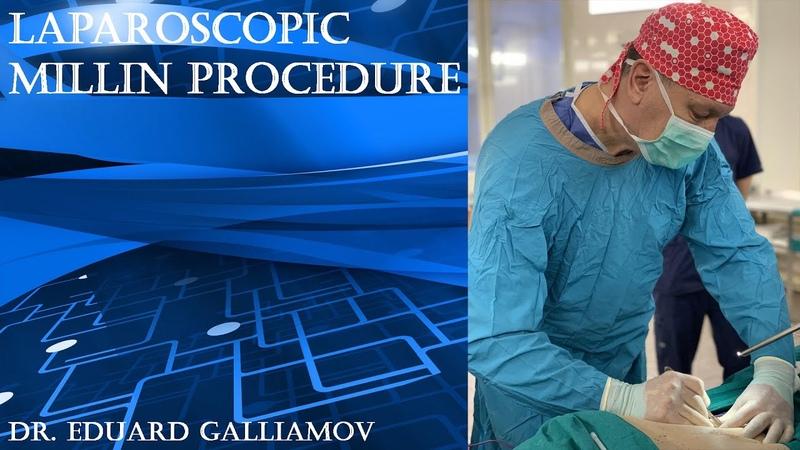 Laparoscopic Millin procedure Лапароскопическая позадилонная аденомэктомия