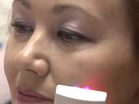 Новое косметологическое оборудование Deta Cosmo по разглаживанию морщин