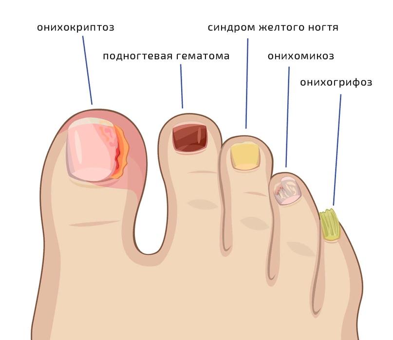 ГОСТ на маникюр - новый закон ногтевого сервиса?, изображение №4