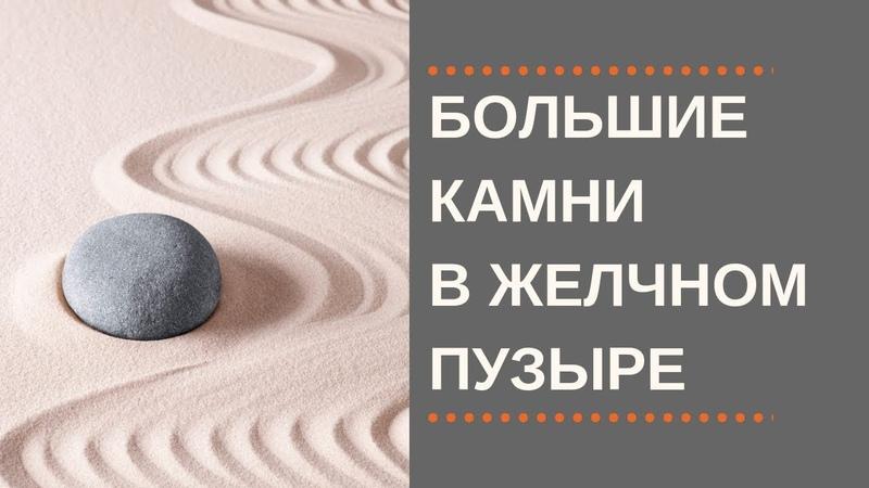 Большие Камни в Желчном. Больше 2 см. Что делать?