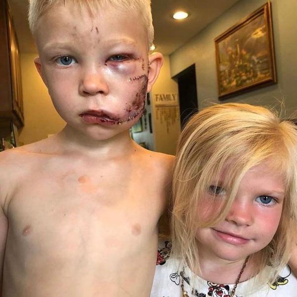6-летний мальчик спас свою сестру от собаки и был серьёзно ранен.