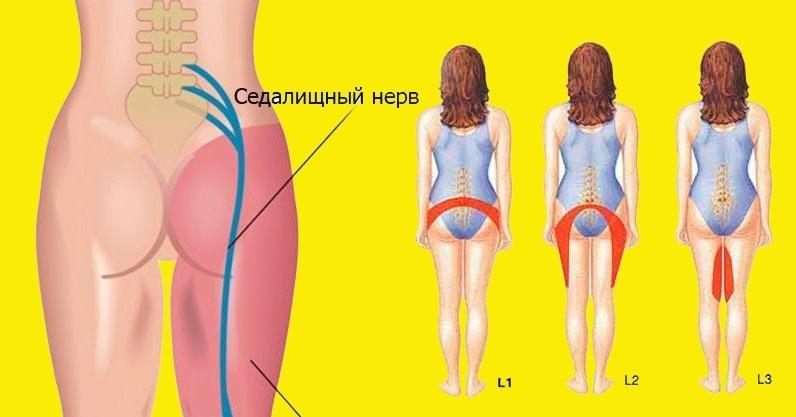 2 простых упражнения для разблокировки седалищного нерва, изображение №1