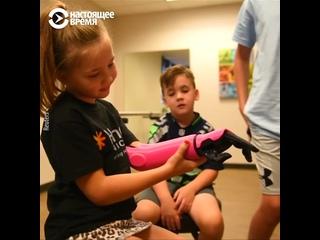 Бионический протез для 8-летней Мейдлин