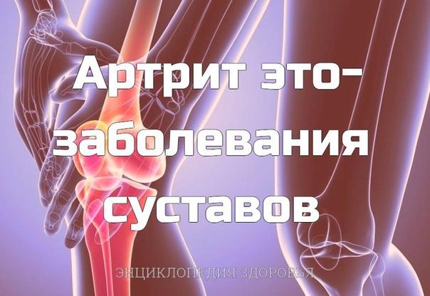 Артрит это-заболевания суставов - одна самых древних проблем человечества