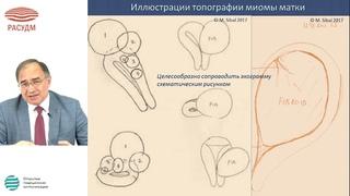 Вебинар SonoScape  Буланов М.Н.